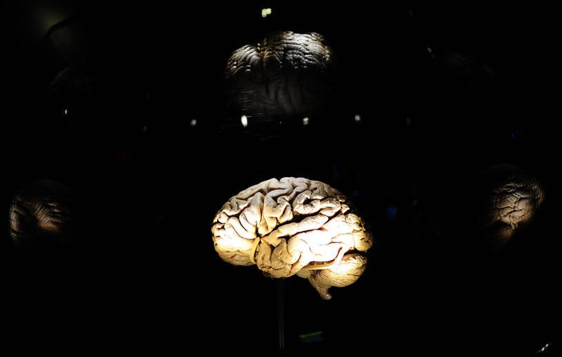 To kształt naszych mózgów jest wyjątkowy /AFP