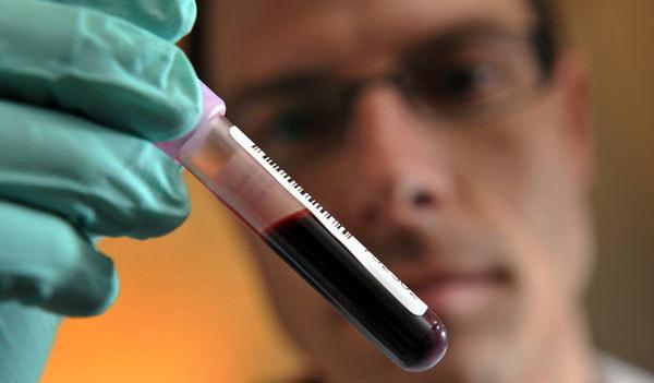 To przełom w walce z białaczką? /AFP