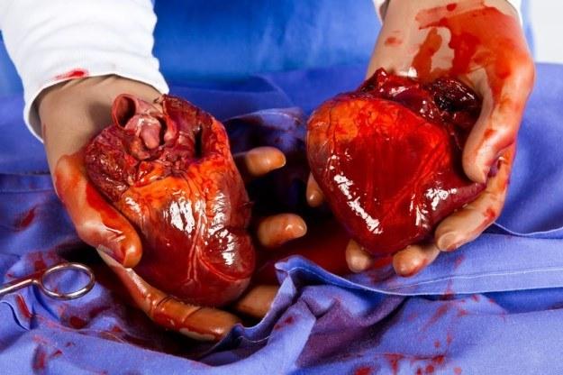Transplantacja serca to dla wielu pacjentów jedyna szansa na ratunek. Niestety, liczba dawców wciąż jest zbyt mała /123RF/PICSEL