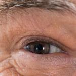 Trzy kobiety wzięły udział w niebezpiecznym eksperymencie i straciły wzrok
