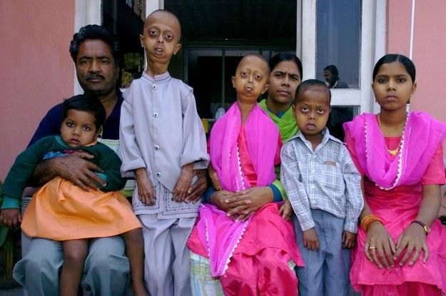 Tu Ali jeszcze przed atakiem choroby (drugi z prawej) /AFP