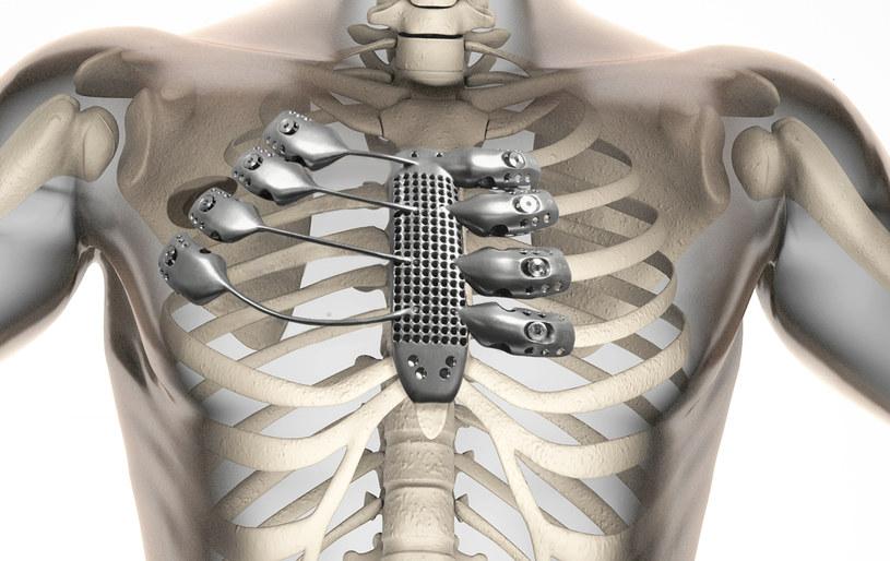 Tytanowy mostek i fragment żeber przeszczepiono 54-latkowi /fot. Anatomics /materiały prasowe