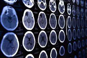 Udało się wyłączyć w mózgu odczuwanie bólu