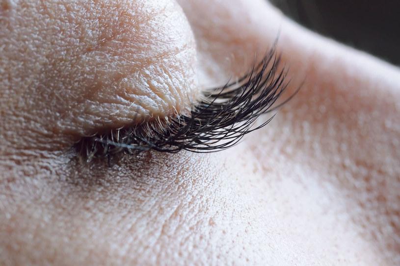 Utrata 1-2 rzęs dziennie jest normą. Gdy wypada ich więcej albo tracimy je kępkami, należy zgłosić się do dermatologa /©123RF/PICSEL