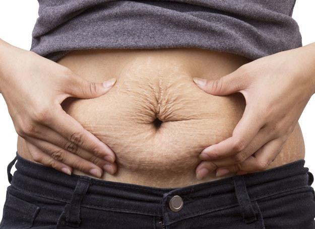 Utrata wagi powyżej 0,5-0,75 kg tygodniowo przyczynia się do powstawania rozstępów /©123RF/PICSEL