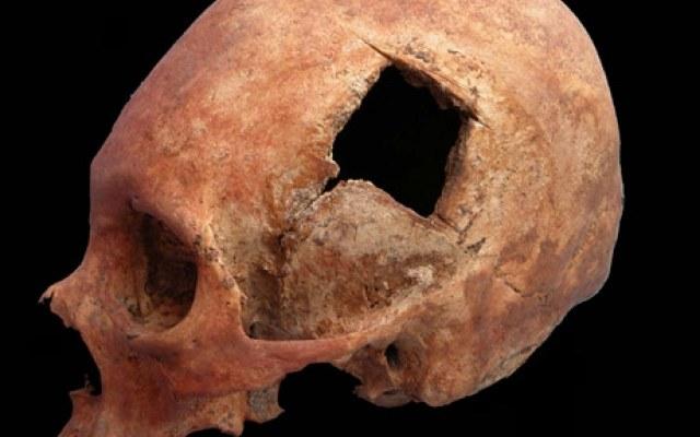 W czasach imperium Inków lekarze wykonywali bardziej udane operacje trepanowania czaszki niż chirurdzy w XIX wieku /Innemedium.pl
