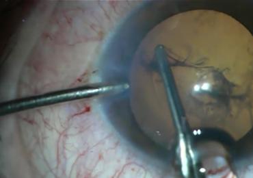 W jego oko wbił się metalowy przedmiot. Zobacz nagranie ze skomplikowanej operacji