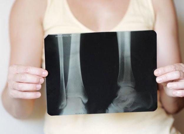 W procesie rozwoju osteoporozy stopniowo ubywa masy kostnej /123RF/PICSEL