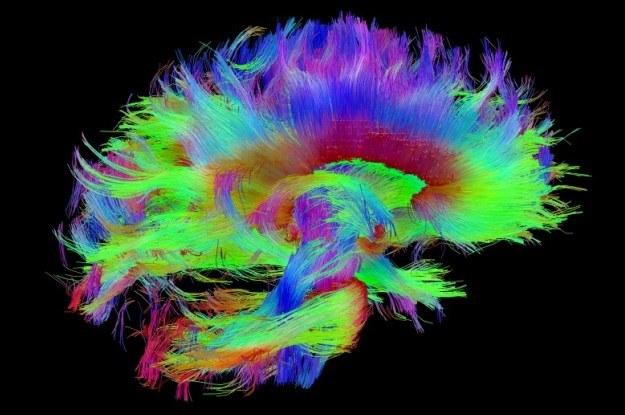 W ramach programu Human Connectome Project Amerykanie stworzą najdokładniejszą mapę ludzkiego mózgu /materiały prasowe