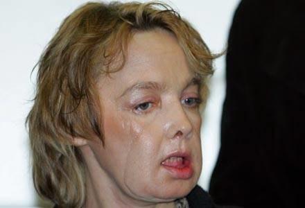 W zeszłym roku dokonano przeszczepu twarzy kobiety, która została pogryziona przez psa /RMF