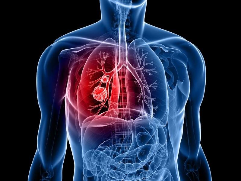 Walka z rakiem płuc teraz będzie skuteczniejsza? /123RF/PICSEL
