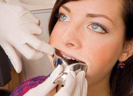Warto jeszcze przed planowaną ciążą odwiedzić stomatologa i dokonać przeglądu uzębienia /© Panthermedia