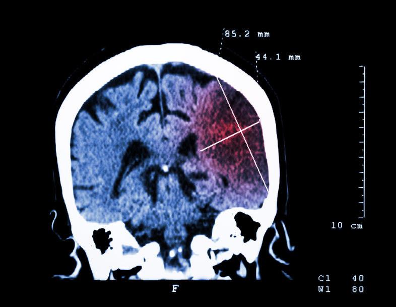 Większy mózg nie zawsze jest lepszy dla organizmu /©123RF/PICSEL