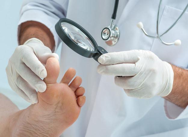 Wrastający paznokieć powinien obejrzeć specjalista /123RF/PICSEL