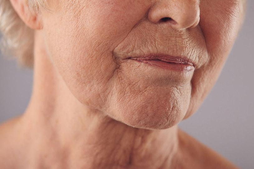 Wraz z upływem czasu wargi i skóra wokół nich tracą sprężystość. Usta nie są już tak pełne jak kiedyś, a na skórze pojawiają się bruzdy, które stają się coraz bardziej widoczne /123RF/PICSEL