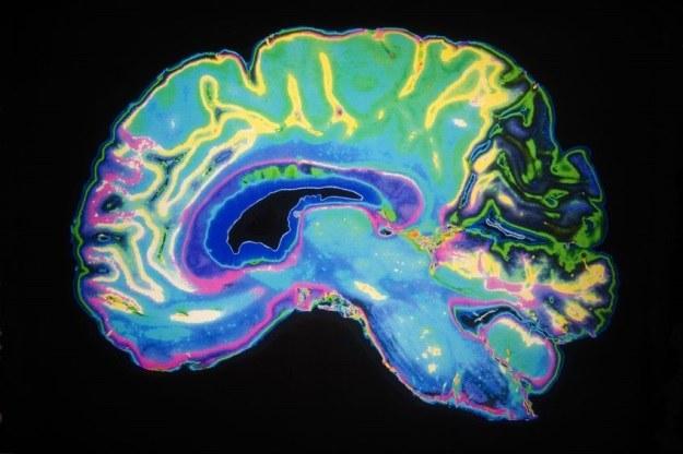 Wreszcie uda się odpowiednio wcześnie zdiagnozować chorobę Alzheimera? /123RF/PICSEL