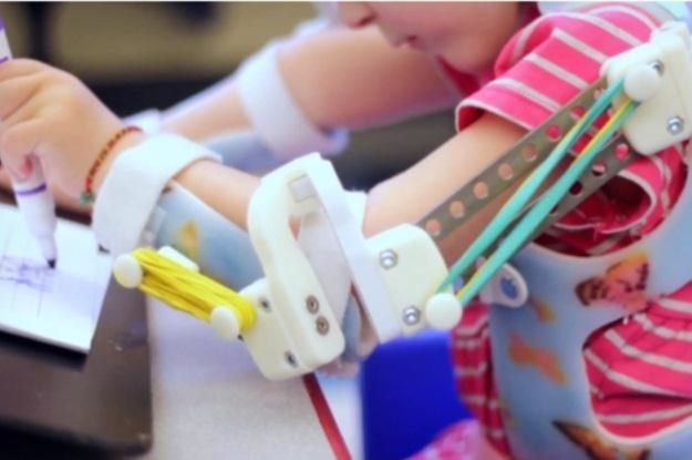 WREX nadzieją dla niepełnosprawnych dzieci /materiały prasowe