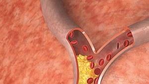 Wszystko o cholesterolu