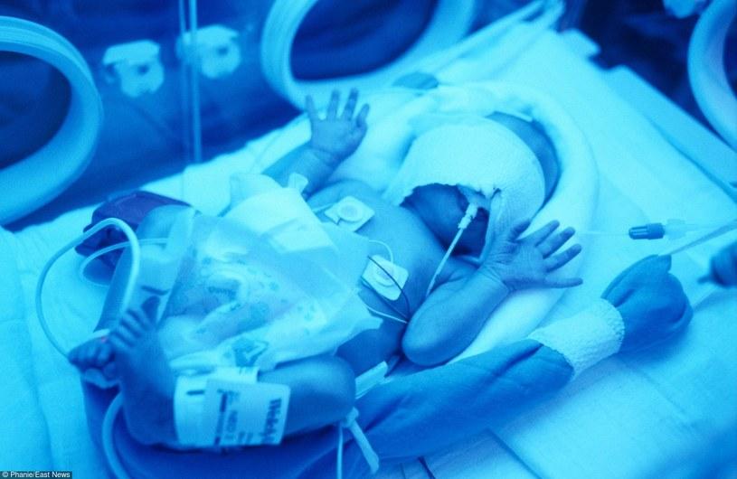 Za wcześnie rodzi się nie tylko dziecko, ale i jego matka /East News