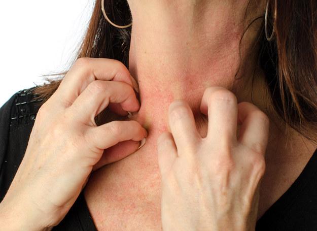 Zaczerwienienie? Swędzenie? To może być alergia... /123RF/PICSEL