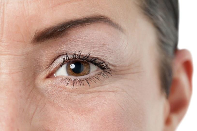 Zadbaj o skórę wokół oczu /123RF/PICSEL