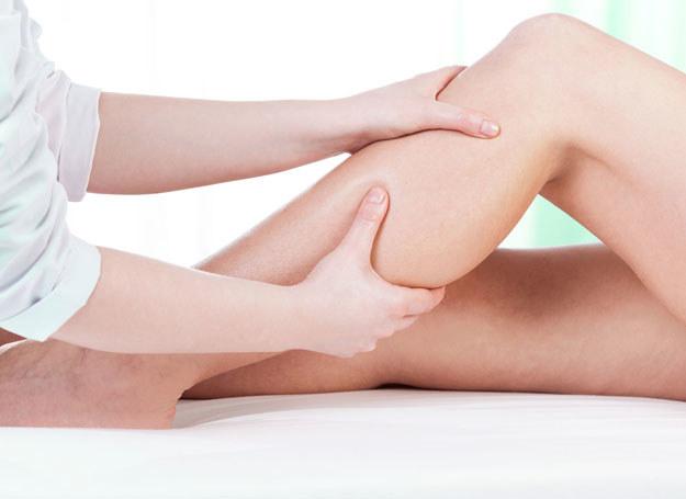 Zakrzepica nóg dotyka najczęściej kobiety /123RF/PICSEL