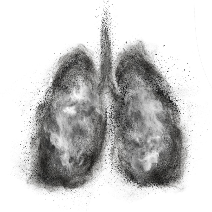 Zanieczyszczone powietrze sprzyja także rozwojowi raka płuc, który do niedawna kojarzony był głównie z chorobą palaczy /123RF/PICSEL