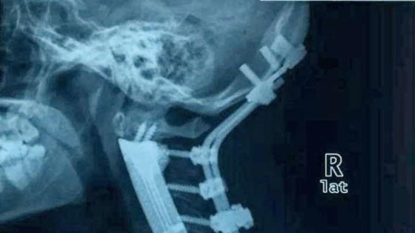 Zdjęcie rentgenowskie pacjentki po operacji /materiały prasowe