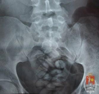 Zdjęcie RTG zatrzymanego przemytnika. W jego ciele znajdowało się 30 kapsułek z narkotykami.  /fot. Policja