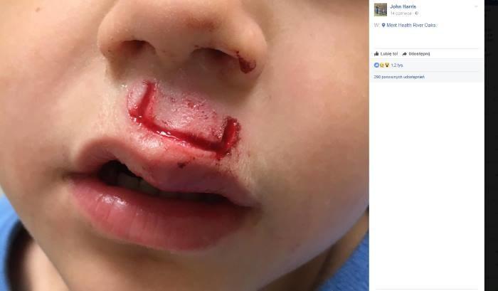 Zdjęcie umieszczone przez Johna Harrisa na Facebooku ku przestrodze dla innych rodziców /Internet