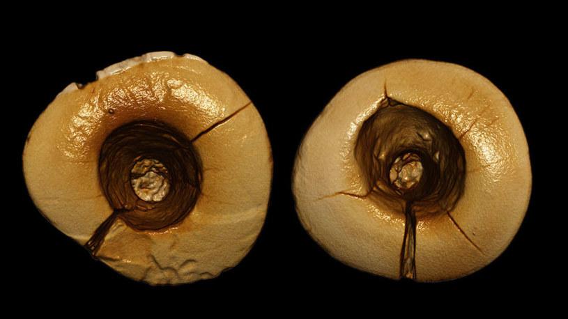 Zęby po wizycie u prehistorycznego stomatologa /fot. Gregorio Oxilia /materiały prasowe
