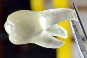 Zęby z drukarki 3D