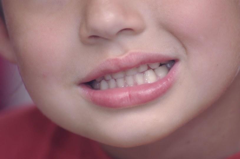 Zgrzytanie zębami może nas niepokoić po trzecim roku życia /©123RF/PICSEL