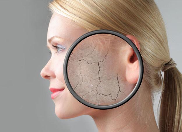 Zimą problem suchej skóry jest powszechny, dlatego też warto ją odżywiać w sposób właściwy /123RF/PICSEL