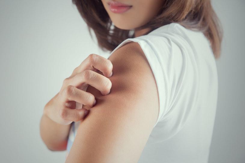 Zmiany skórne na ramionach mogą świadczyć o problemach z układem pokarmowym /123RF/PICSEL