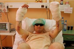 Żołnierz, któremu przeszczepiono obie ręce, rusza palcami