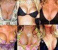 sztuczne-piersi-20042801.jpg