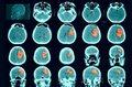 Udar mózgu i rak mają ze sobą wiele wspólnego