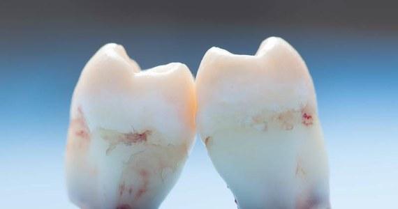 Nie 28, a 260 zębów miał w swojej szczęce 17-letni nastolatek z Indii. Dzięki 7-godzinnemu zabiegowi operacyjnemu, lekarzom udało się usunąć zbędne uzębienie młodego pacjenta.
