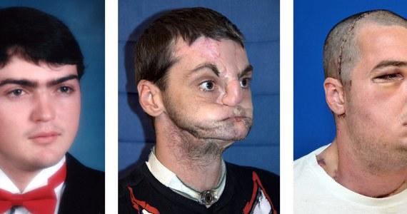 """Mężczyzna, któremu dwa lata temu przeszczepiono twarz, trafił na okładkę magazynu. Portret Richarda Lee Norrisa opublikował magazyn """"GQ""""."""