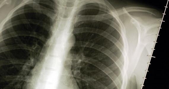 Francuscy naukowcy opracowali metodę bardzo wczesnego wykrywania raka płuc - nawet kilka lat wcześniej, zanim nowotwór będzie widoczny na zdjęciach rentgenowskich. Wszystko dzięki prostemu badaniu krwi! Pacjent dostaje ich rezultat w ciągu kilku minut.