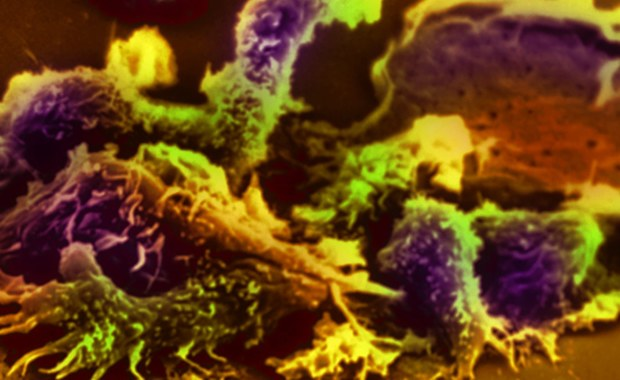 """Podobnie, jak bakterie czy wirusy, komórki nowotworowe mają potencjał zarażania zdrowych komórek i w związku z tym rozprzestrzeniania choroby nowotworowej - przekonują naukowcy z Uniwersytetu Delaware. Wyniki ich badań, opisane na internetowej stronie czasopisma """"Journal of Cell Science"""" wskazują, że komórki rakowe mogą bezpośrednio oddziaływać na sąsiadujące z nimi komórki zdrowe i zmieniać je w niekorzystny dla nas sposób."""