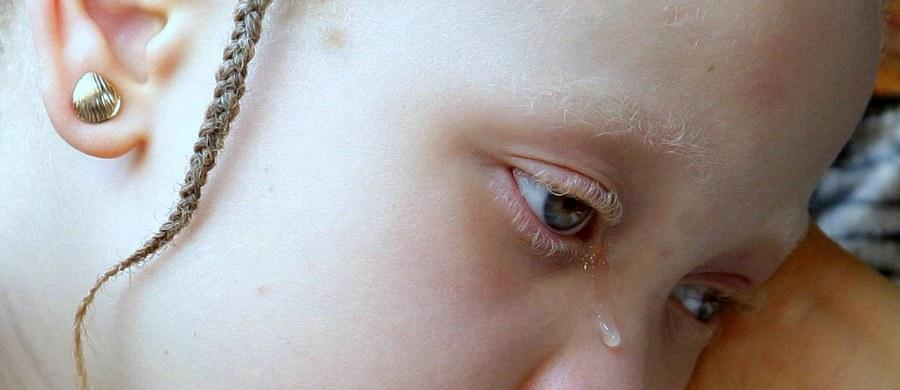 Cierpiąca na albinizm 5-letnia dziewczynka została uprowadzona, a następnie zamordowana w Burundi. To nie pierwszy tego typu przypadek w tym kraju. Albinosi są zabijani w wielu krajach Afryki. Ich mieszkańcy wierzą w magiczną moc ich organów.