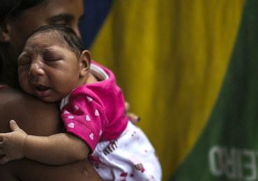 Wiadomo już, jak wirus Zika może wywoływać małogłowie