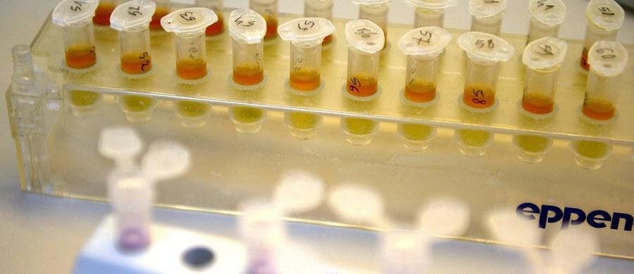 Światowa Agencja Antydopingowa (WADA) odebrała w piątek ze skutkiem natychmiastowym akredytację laboratorium w Moskwie, ponieważ w dalszym ciągu nie spełniało norm jakości przy analizach próbek. Wcześniej ujawniono, że dyrektor placówki miał zlecić zniszczenie blisko 1,5 tys. próbek w związku z przypadkami dopingu w rosyjskiej lekkoatletyce.