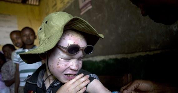 """Albinosi w Malawi, w tym małe dzieci, są ofiarami """"bezprecedensowej fali brutalnych ataków"""", którym nie zapobiega policja - oświadczyła organizacja Amnesty International (AI). Części ciała albinosów są wykorzystywane do obrzędów rytualnych."""