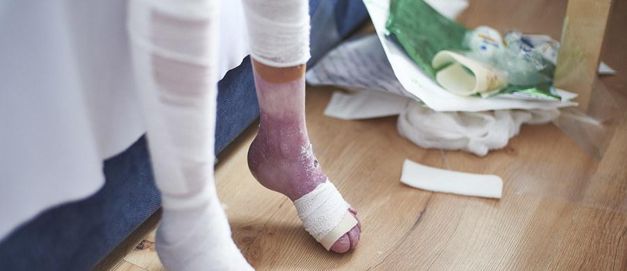 W poniedziałek kolejny tysiąc bezpłatnych opatrunków dla chorych na EB, czyli pęcherzowe oddzielanie się naskórka, trafi do Poradni Dermatologii i Wenerologii w Warszawie - dowiedział się reporter RMF FM. To ostatnia część ze specjalnej puli darmowych bandaży dla pacjentów. Od stycznia niektóre refundowane opatrunki podrożały nawet o ponad 700 procent!