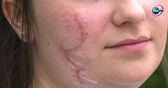 Policja zatrzymała drugą osobę w sprawie ataku rozbitą butelką na dwie młode kobiety w Katowicach. To mężczyzna, który brał udział w bójce tuż przed tym zdarzeniem. Od wczoraj w rękach policji jest także 26-latek, który zadał ciosy.