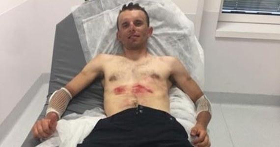 Rafał Majka wycofał się dalszej rywalizacji w Tour de France. Polak podczas niedzielnego etapu upadł i z trudem dojechał do mety.