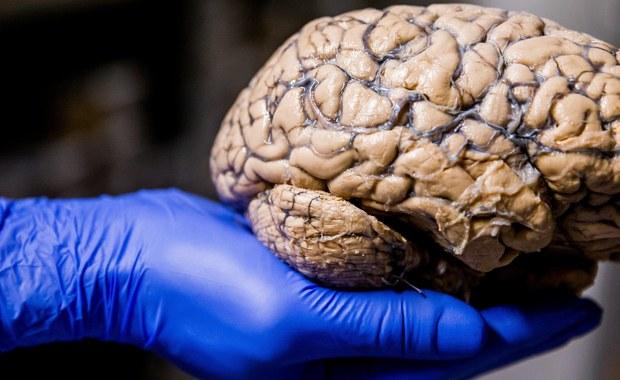 Mózg człowieka jest wciąż doskonalszy niż jakikolwiek komputer. Ma jednak pewną wadę - nie będzie już lepszy. Przekonują o tym brytyjscy i szwajcarscy naukowcy. Przeprowadzone przez nich analizy sugerują, że dalszy ewolucyjny rozwój najważniejszego z naszych organów przyniósłby nam więcej szkody niż pożytku. Inaczej mówiąc, cena, jaką przy okazji musielibyśmy zapłacić, byłaby zbyt wysoka. To może nie jest specjalnie optymistyczny wniosek. Jednak kiedy tak patrzę na to, co współcześnie w naszym społecznym myśleniu jest najmodniejsze, myślę sobie, że chyba rzeczywiście mądrzejsi już byliśmy.